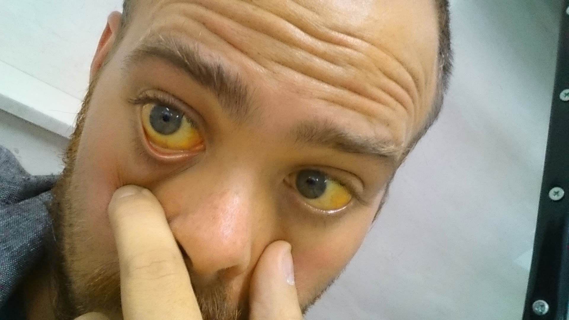 Hepatitis B Patient Eyes How to treat Jaundice ...